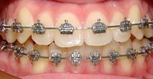 Thời gian niềng răng