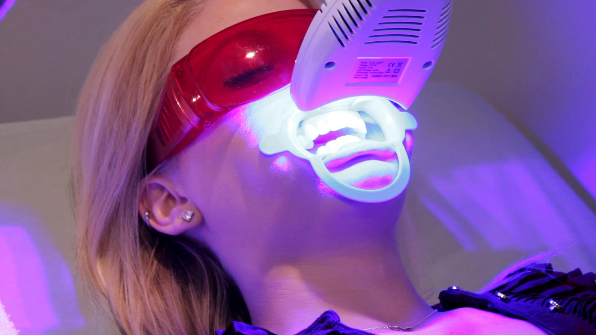 Tẩy trắng răng bằng Laser Whitening