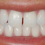niềng răng hô thẩm mỹ