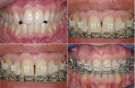 Thời gian niềng răng bằng mắc cài kim loại