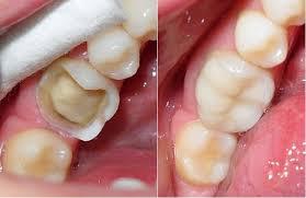 Vật liệu nào có thể dùng trám răng