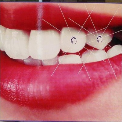 Làm gì khi bị ê buốt răng sau khi tẩy trắng ?