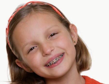 Niềng răng người lớn và trẻ em