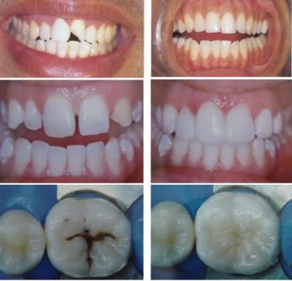 Trám răng có cần lấy tủy
