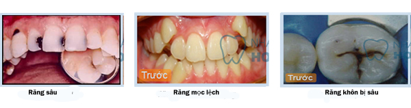Răng khôn mọc muộn hoặc bị gãy vỡ nặng