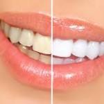 Bọc răng sứ mang lại cho bạn sự tự tin