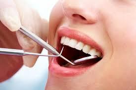 Nhổ răng khôn đem lại nhiều lợi ích