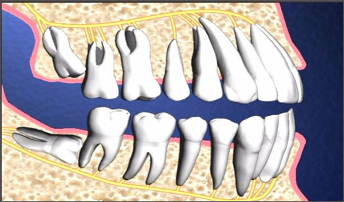 Răng khôn có thể gây viêm nhiễm đau nhức