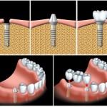 Trồng răng giả có duy trì được lâu không?