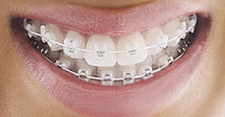 Tiêu chí lựa chọn Bác sĩ niềng răng