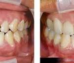 Những chỉ định nên làm răng sứ thẩm mỹ