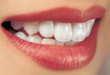 Tẩy trắng răng giúp bạn có một hàm răng trắng