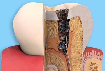 Ứng biến với răng sâu bị chết tủy