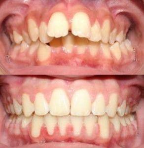 niềng răng lệch lạc sử dụng công nghệ tiên tiến