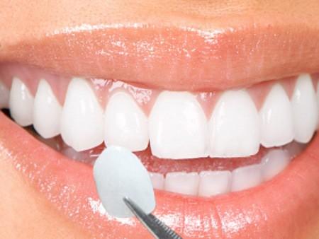 Bọc răng sứ thẩm mỹ do răng nhiễm màu nặng