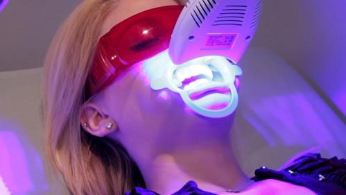 Có nên tự tẩy trắng răng ở nhà không ?