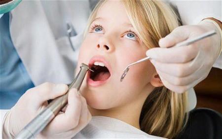 Trám răng thẫm mỹ cho trẻ em