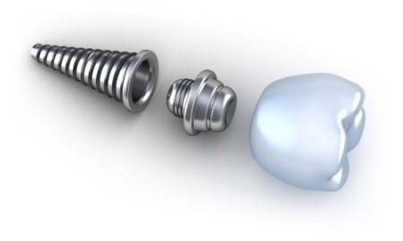 cau-tao-cua-rang-implant-nha-khoa-1