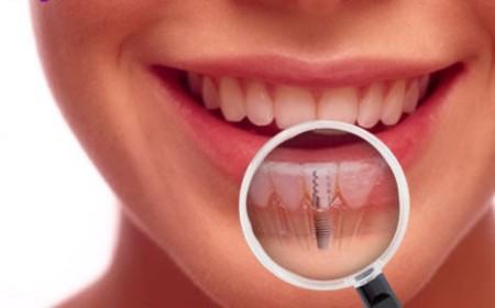 dental-implants-e1407728339287
