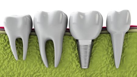 Implant (1)