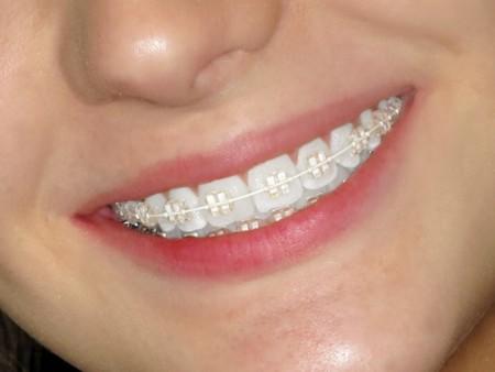 Các loại niềng răng mắc cài tự đóng