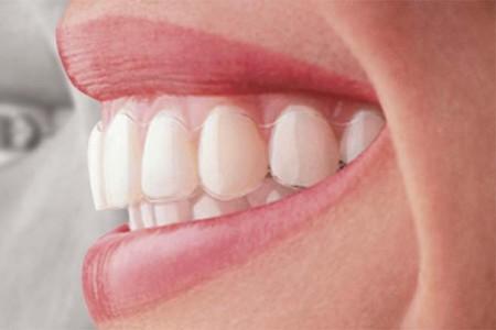 Dán răng sứ veneer thẩm mỹ