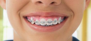 Ưu và nhược điểm của các loại niềng răng thẩm mỹ hiện nay