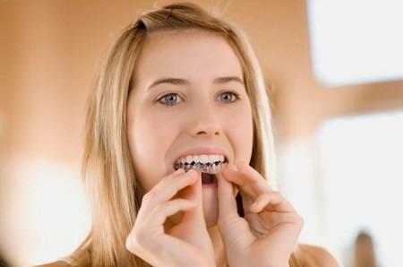 Niềng răng thẫm mỹ bằng nhựa