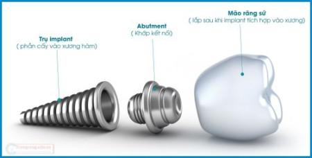 implant-chiu-luc-tuc-thi-2