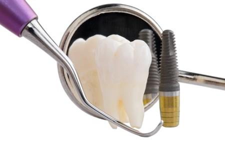 implant-chiu-luc-tuc-thi-4