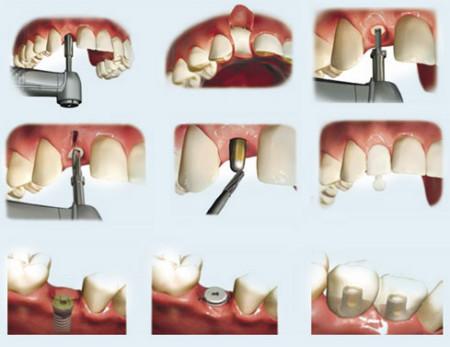 implant-nha-khoa-giai-phap-cho-rang-mieng-3