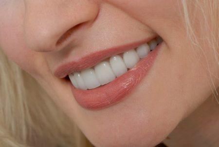 bọc răng sứ thẩm mỹ titan