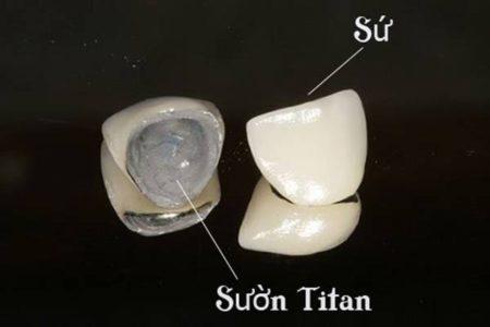 Chi phí để Bọc răng sứ Titan ?