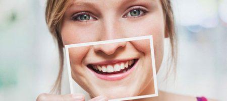 bọc răng sứ thẩm mỹ toàn sứ cercon