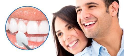 Bọc răng sứ veneer thẩm mỹ