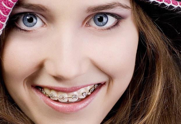 Niềng răng mắc cài kim loại chất lượng uy tín