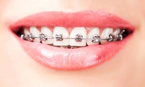 niềng răng mắc cài tự đóng