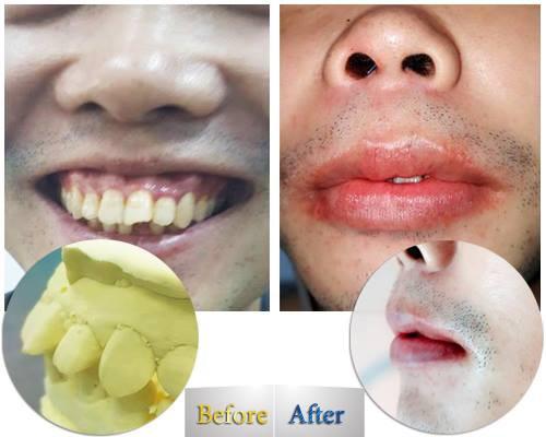 phẫu thuật hàm hô móm kết hợp niềng răng 3d CLear