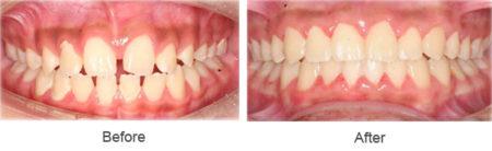 Bọc răng sứ cho răng bị thưa