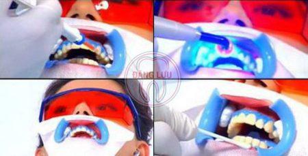Tẩy trắng răng mất bao lâu thời gian