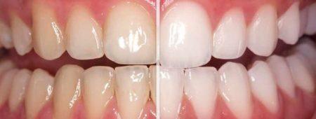 Tẩy trắng răng an toàn hiệu quả