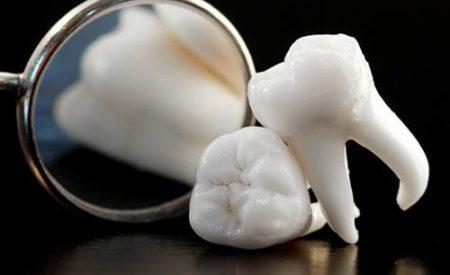 Răng khôn là răng số mấy