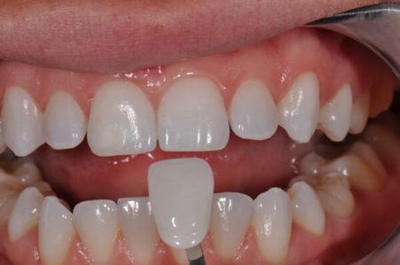 bọc răng sứ thẩm mỹ loại nào tốt nhất