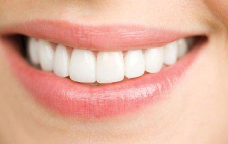 Bọc răng sứ được bao lâu – có phải làm lại không?