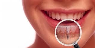 cắm implant răng cửa như thế nào