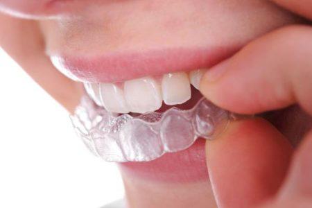 Quy trình tẩy trắng răng tại nhà như thế nào?