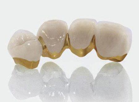 Làm răng sứ kim loại có tốt không