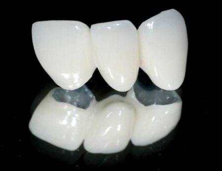 Làm răng sứ thẩm mỹ kim loại có tốt không