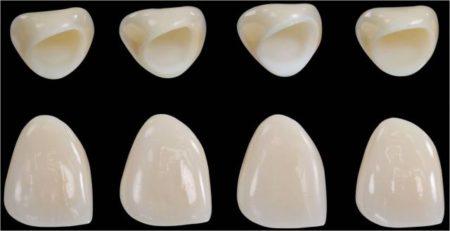 răng sứ toàn sứ