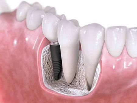 Cấy ghép implant cho răng hàm như thế nào?